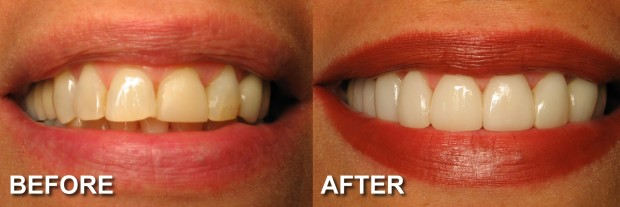 14- LUMINEERS - Stained & Chipped Teeth 3 - Dentist Indianapolis - Dr Jerrold Goldsmith DDS