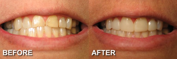 17 - LUMINEERS - Stained & Chipped Teeth 2 - Dentist Indianapolis - Dr Jerrold Goldsmith DDS