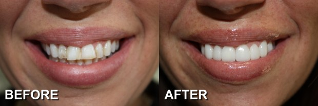 2 - LUMINEERS - Stained & Chipped Teeth 1 - Dentist Indianapolis - Dr Jerrold Goldsmith DDS