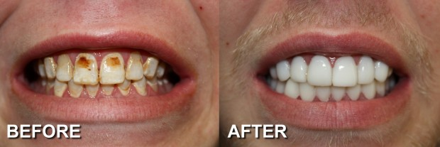 20 - LUMINEERS & Snap-On Smile 2 - Dentist Indianapolis - Dr Jerrold Goldsmith DDS