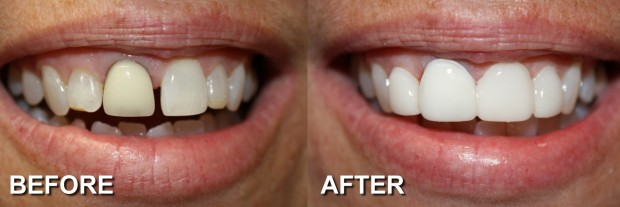 24 - LUMINEERS - Discolored Crowns 2 - Dentist Indianapolis - Dr Jerrold Goldsmith DDS