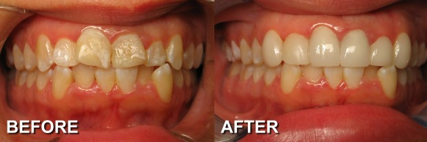 26 - LUMINEERS - Misaligned Teeth 2 - Dentist Indianapolis - Dr Jerrold Goldsmith DDS