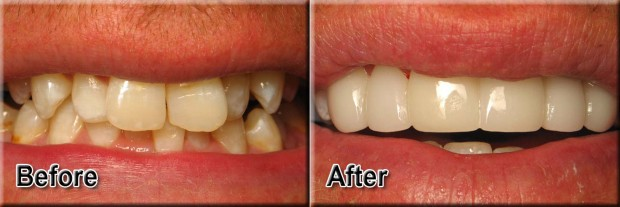 28 - LUMINEERS - Misaligned Teeth 1 - Dentist Indianapolis - Dr Jerrold Goldsmith DDS