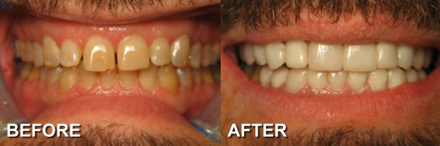 3 - LUMINEERS - Stained Teeth 1 - Dentist Indianapolis - Dr Jerrold Goldsmith DDS