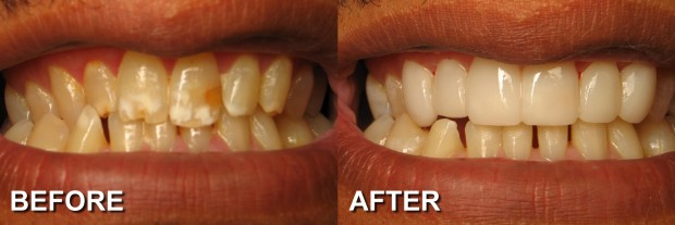 40 - LUMINEERS - Stained Teeth 9 - Dentist Indianapolis - Dr Jerrold Goldsmith DDS