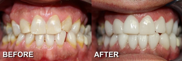 42 - LUMINEERS - Stained Teeth 3 - Dentist Indianapolis - Dr Jerrold Goldsmith DDS