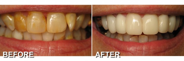 44 - LUMINEERS - Stained Teeth 2 - Dentist Indianapolis - Dr Jerrold Goldsmith DDS