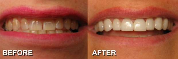 5 - LUMINEERS - Stained Teeth 22 - Dentist Indianapolis - Dr Jerrold Goldsmith DDS