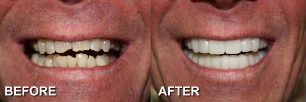 57 - Snap-On Smile - Chipped Teeth 5 - Dentist Indianapolis - Dr Jerrold Goldsmith DDS