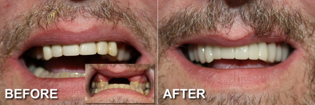 58 - Snap-On Smile - Partial Denture 1 - Dentist Indianapolis - Dr Jerrold Goldsmith DDS
