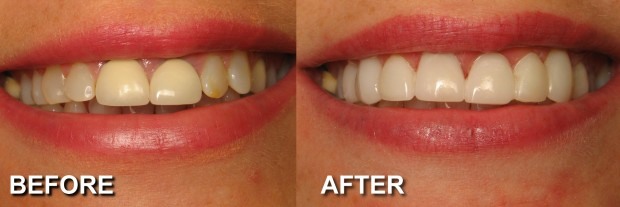 6 - LUMINEERS - Discolored Crowns 1 - Dentist Indianapolis - Dr Jerrold Goldsmith DDS