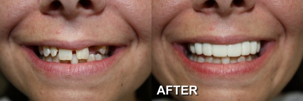 63 - Snap-On Smile - Partial Denture 4 - Dentist Indianapolis - Dr Jerrold Goldsmith DDS