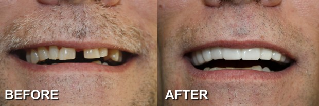 64 - Snap-On Smile - Spaced Teeth 2 - Dentist Indianapolis - Dr Jerrold Goldsmith DDS