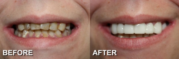 66 - Snap-On Smile - Stained Teeth 3 - Dentist Indianapolis - Dr Jerrold Goldsmith DDS