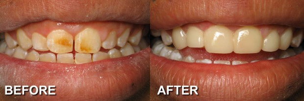 9 - LUMINEERS - Small & Stained Teeth 1 - Dentist Indianapolis - Dr Jerrold Goldsmith DDS