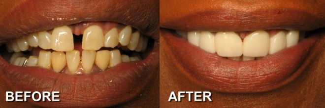 Best Dentist For Veneers