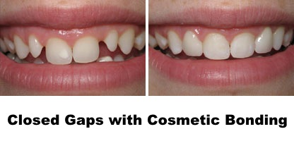 closed gaps with cosmetic bonding