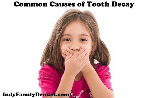 common causes of tooth decay