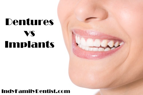 comparison of dentures vs implants