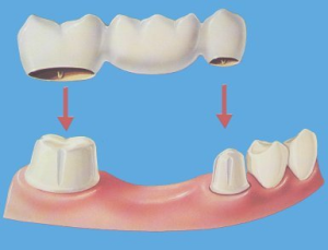 blog image of teeth capping