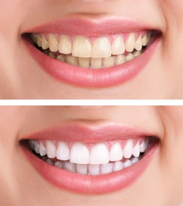 teeth whitening in Indianapolis (317) 357-4018
